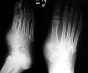 Bone Tumors in the Foot