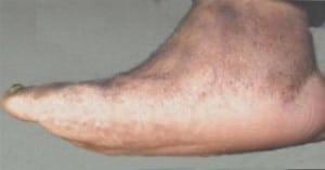 Charcot-Foot