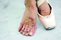 Ballet Foot Problems
