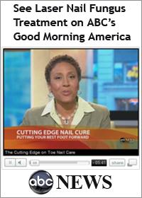 Good Morning America Nail Fungus