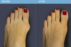 Bunion Surgery Results