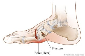 Charcot Foot Diagram