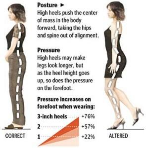 High Heel Incorrect Posture