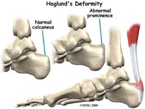 Haglund's Defomity