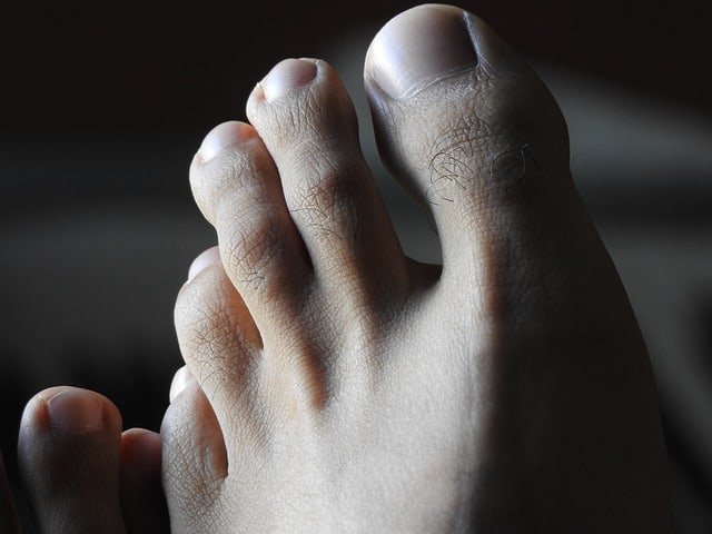 stiff toe hallux rigidus